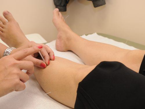The Various Different Ways Acupuncture Can Save Your Life